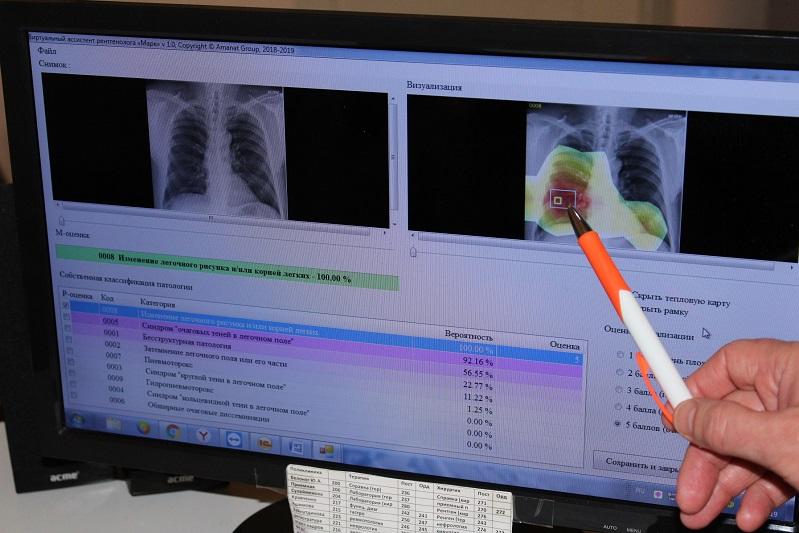 Искусственный интеллект внедряют в больнице СКО