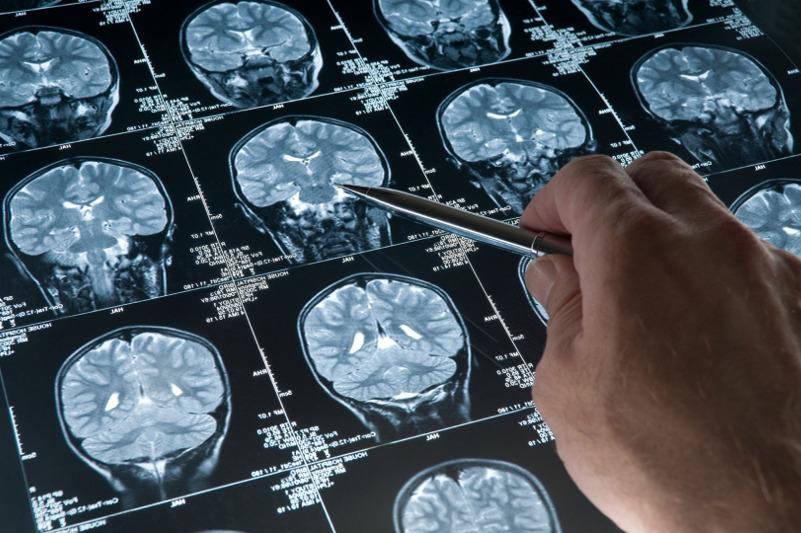 Приравнять эпилептиков к инвалидам предложили в РК