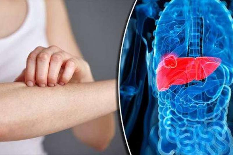 研究显示含铁量高的人更容易感染肝病