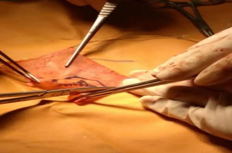 Первая в Казахстане и Центральной Азии: уникальную операцию провели мангистауские кардиохирурги