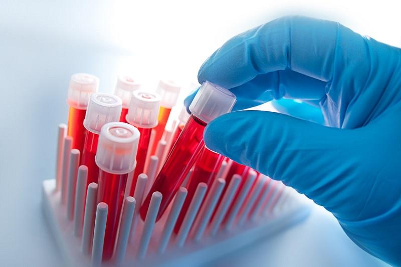 Israeli researchers discover new lung cancer screening via simple blood test