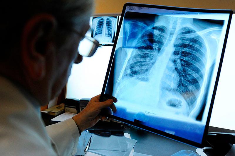 Kókshetaý emhanasy flıýorograf, rentgen-apparat jáne LOR-kombaınymen jabdyqtaldy