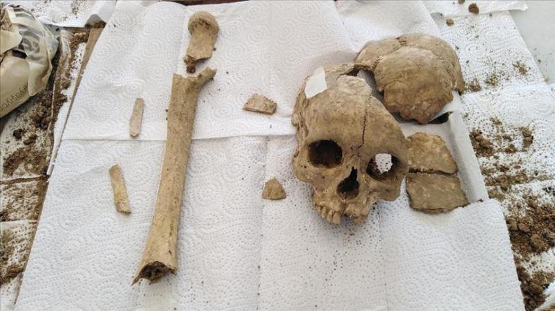3,500-year-old skull found in central Turkey