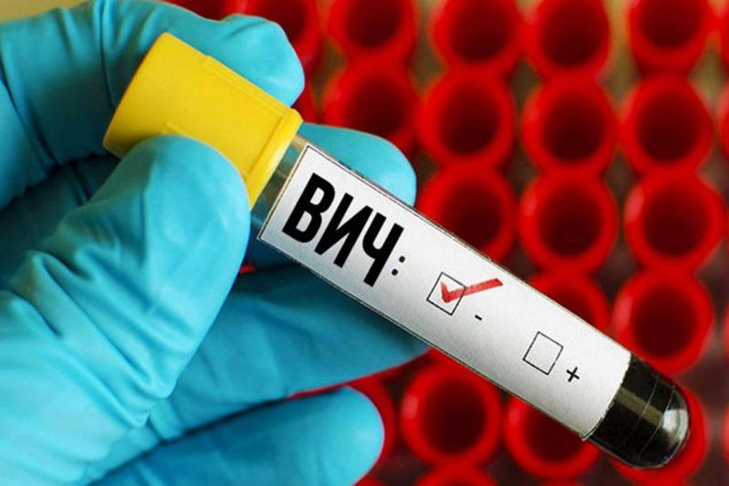 ВИЧ впервые выявили у 304 жителей Павлодарской области