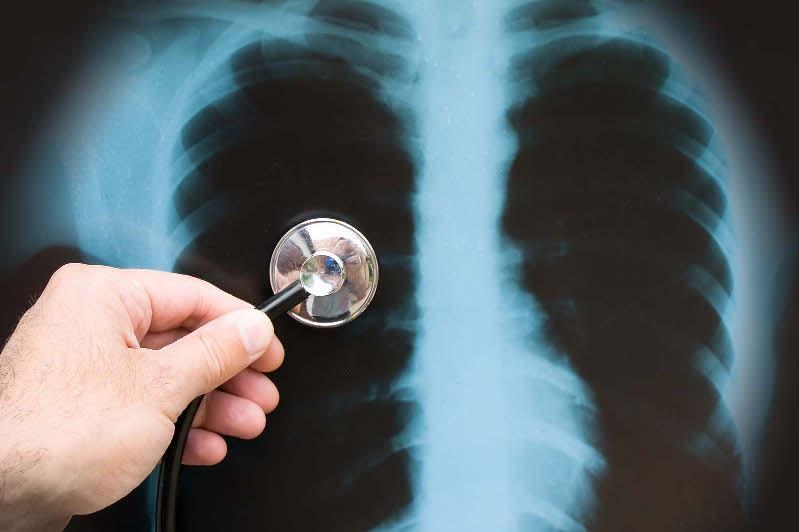 Китай назвал причины вирусной пневмонии