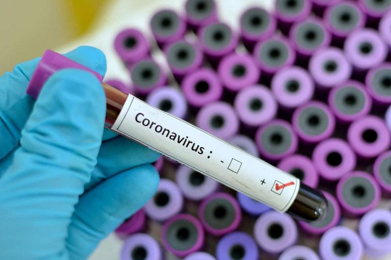 Аустралия мен Францияда коронавирус тіркелді