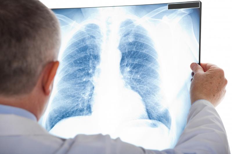 Қазақстанда туберкулезбен күрес айлығы басталды