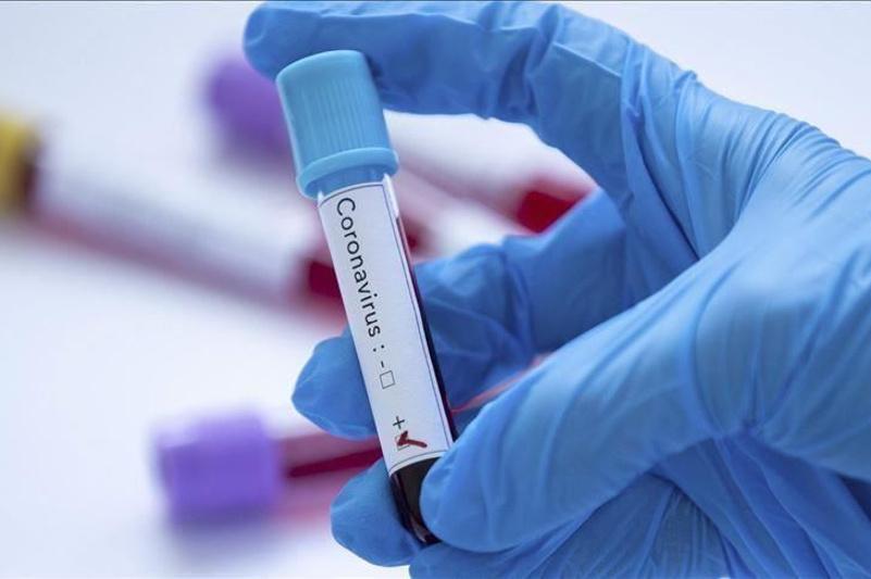 Coronavirus: San Francisco declares state of emergency