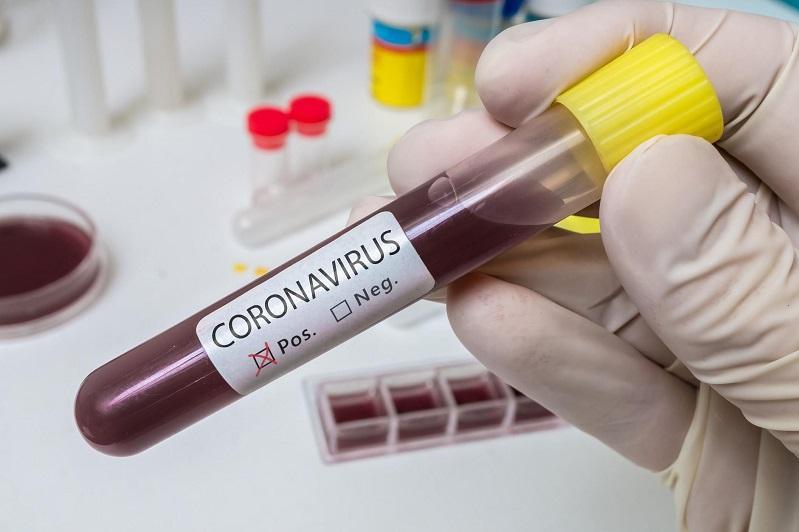 Грузияда коронавирус жұқтырғандар саны 38 болды