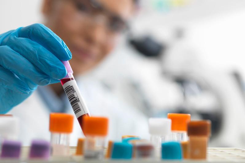 Жапония Қазақстанға коронавирусты анықтауға арналған тестілерді тегін береді