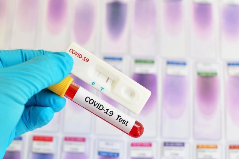 Сколько будут стоить экспресс-тесты на коронавирус в Казахстане