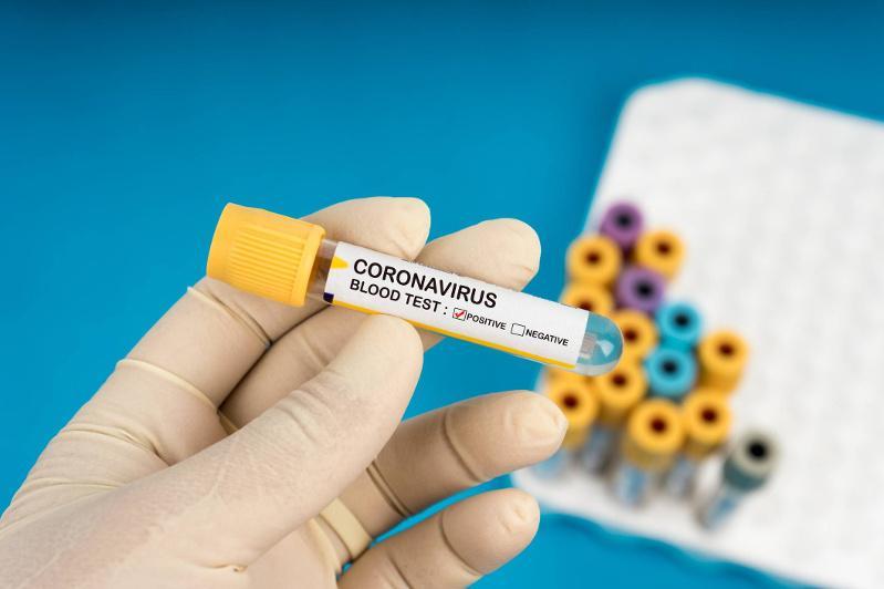 Три случая заболевания коронавирусом зарегистрировано в Атырауской области