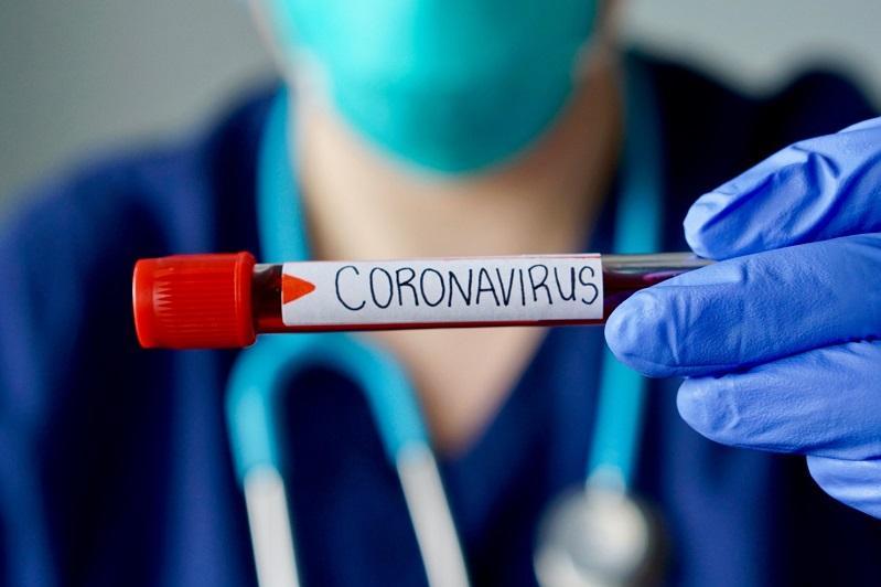 Девять контактных лиц с умершей от коронавируса установлены в Жамбылской области