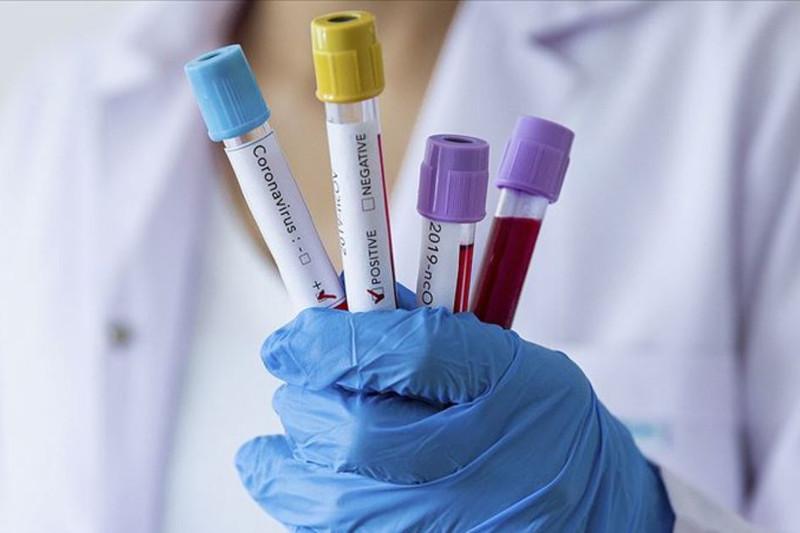 Coronavirus tally climbs to 271 in Kazakhstan