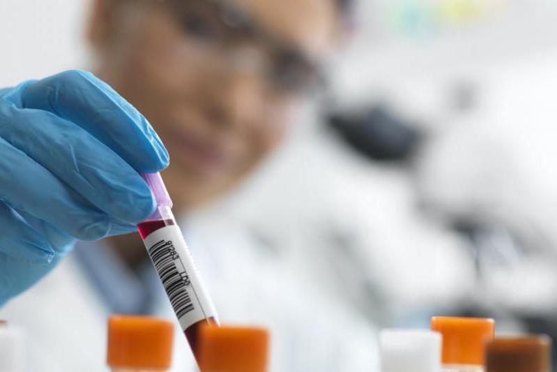 Число заболевших выросло до 340: зарегистрирован случай коронавируса в Туркестанской области
