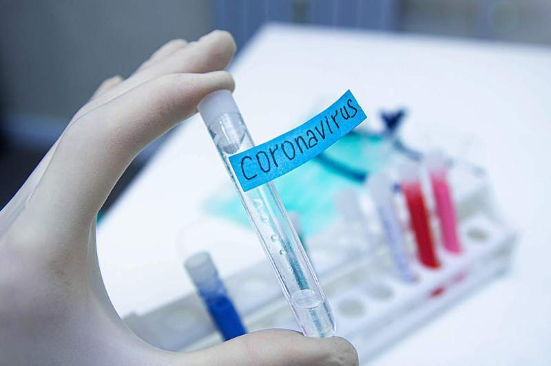 Six new coronavirus cases confirmed in Kyzylorda region
