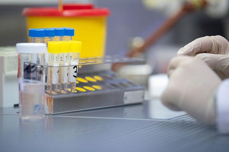 Қырғызстанда алғаш коронавирус анықталған науқас қайтыс болды