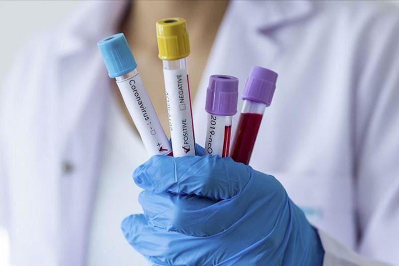 Global coronavirus infections top 1.3M