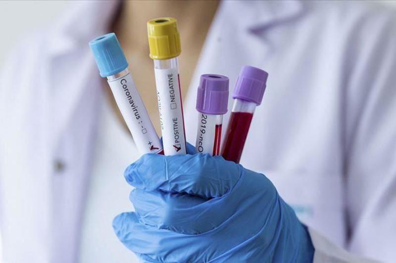 全球新冠肺炎累计确诊超130万例