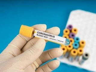 Италияда коронавирусты жұқтырған тағы 3 039 адам анықталды