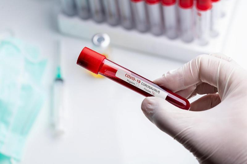 新冠肺炎:23日新增403例确诊病例 单日增幅达5.1%