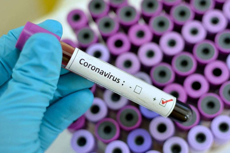 Number of COVID-19 cases across globe up by over 100,000 in past day – WHO