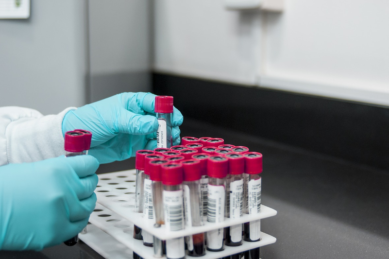 476 more Kazakhstanis tested positive for COVID-19