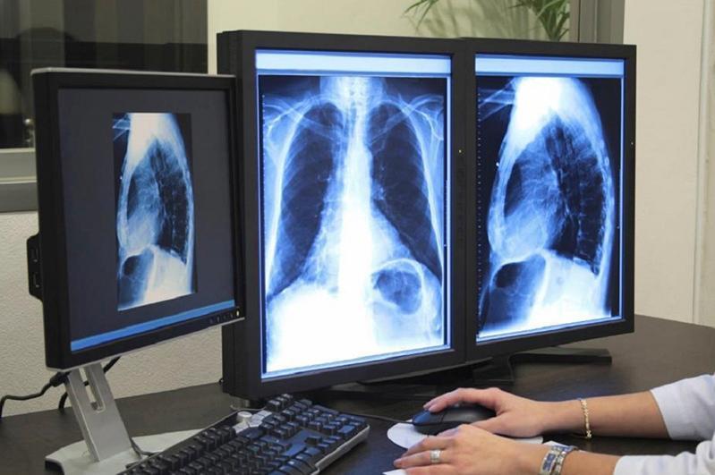 Медсақтандыру: Өкпеге компьютерлік томографияны тегін жасату неліктен қиын