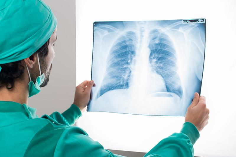Patient with 90% lung damage discharged from Balkhash hospital