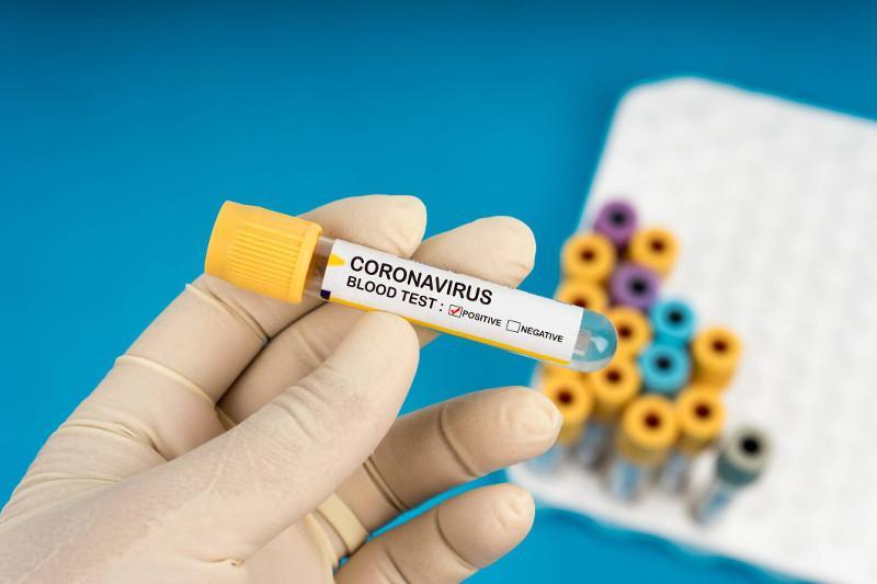 Елімізде 476 адам коронавирус жұқтырды