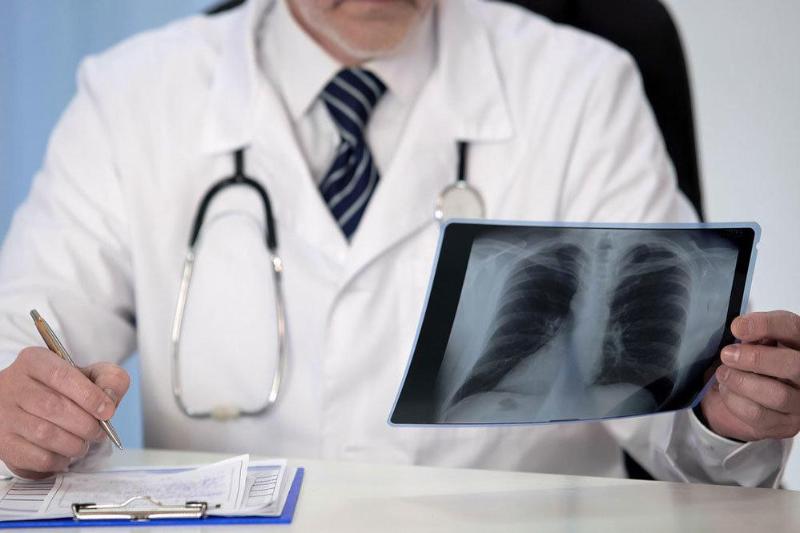 Пневмония с признаками коронавируса: 481 заболевших и четыре смерти за сутки