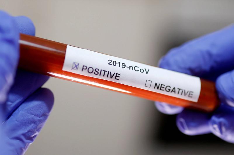 Қазақстанда өткен тәулікте 68 адамнан коронавирус анықталды