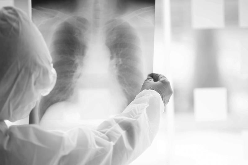 Пневмониядан 1 адам көз жұмды