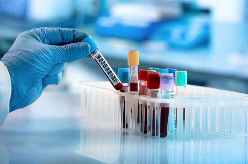 75 заболевших коронавирусом выявили в Казахстане