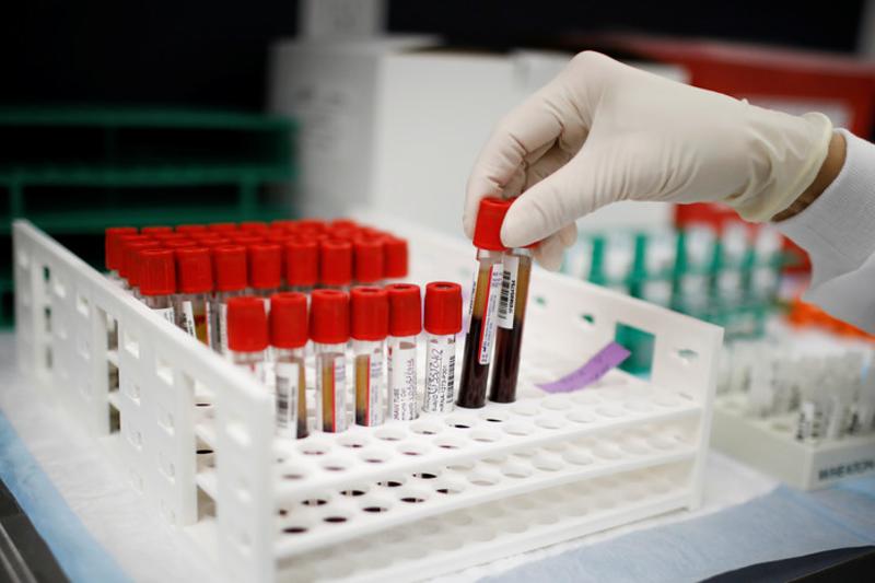 Словакия вводит режим ЧС из-за коронавируса на 45 дней