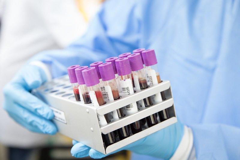 Өкпе қабынуына ПТР тест арқылы анықталмаған жаңа коронавирус себеп болды - ДСМ