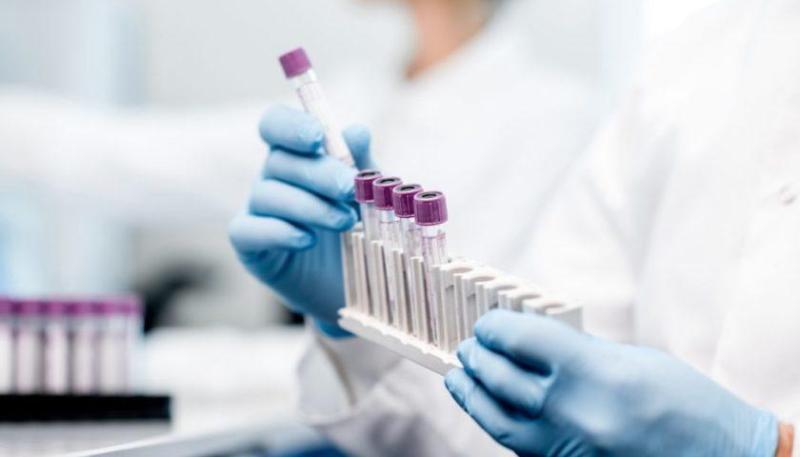 Қазақстанда бір тәулікте 115 адамнан коронавирус анықталды