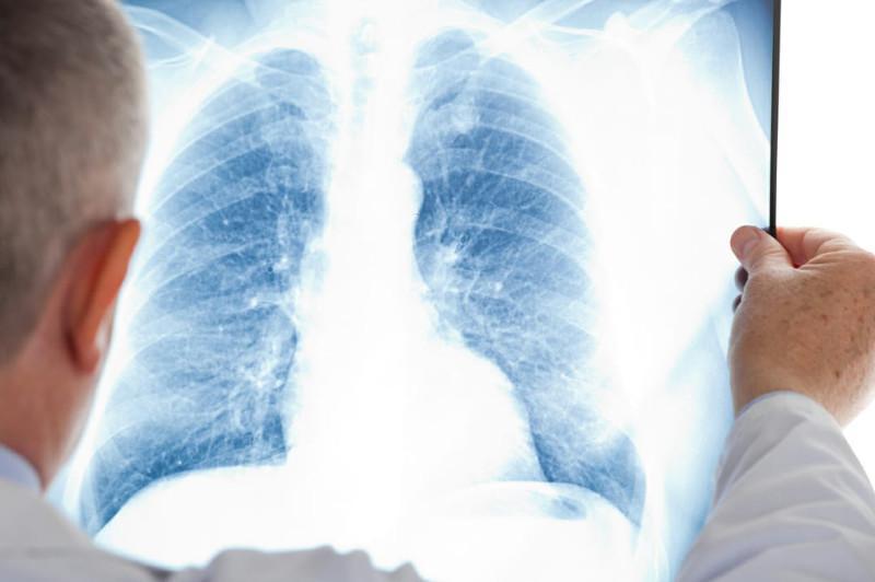 15 случаев пневмонии с признаками коронавируса зафиксировали в Казахстане