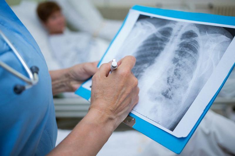 Пневмония с признаками коронавируса: 186 заболевших, один летальный исход
