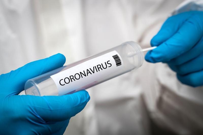 Қазақстанда өткен тәулікте 140 адамнан коронавирус анықталды