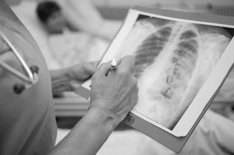 Коронавирус пневмониясынан тағы бір адам қайтыс болды