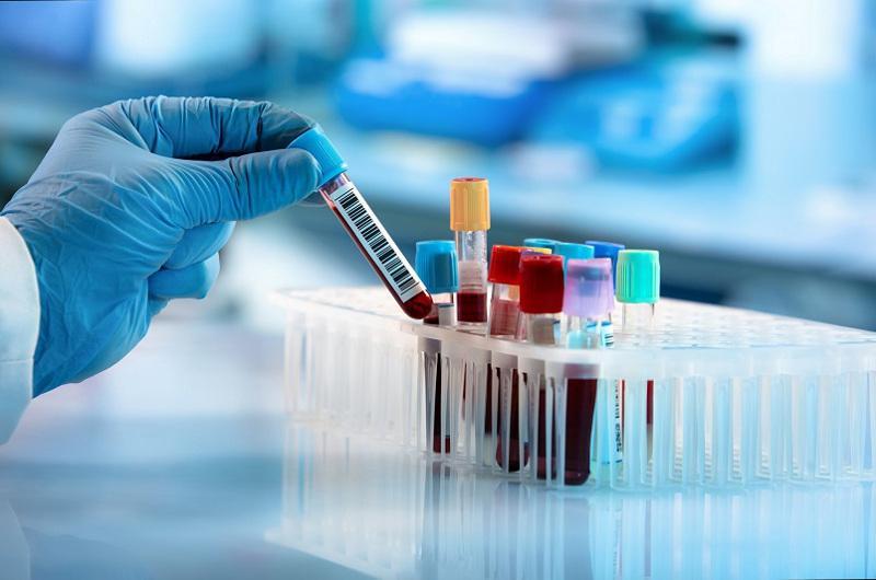 794 случая заболевания коронавирусом выявлено в Казахстане за сутки