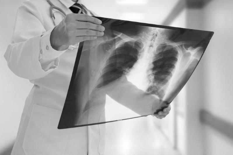 Қозоғистонда 8 кишида пневмония қайд этилди