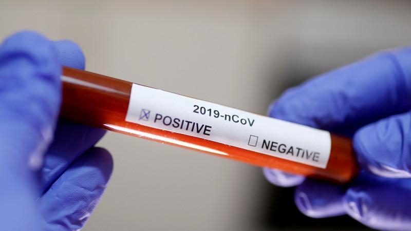 978 заболевших коронавирусом выявили в Казахстане
