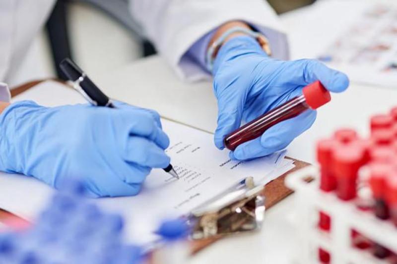 1 134 заболевших коронавирусом выявлено в Казахстане за сутки