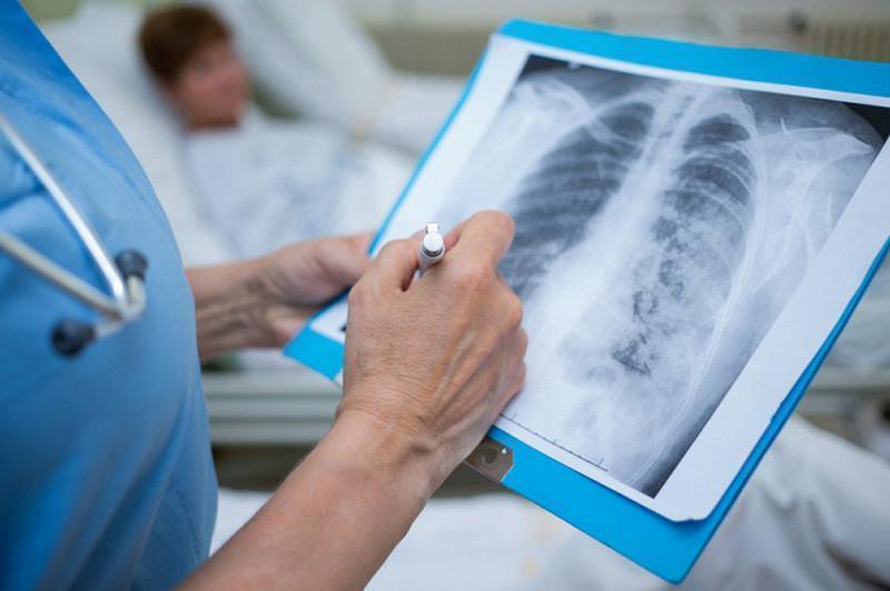 Пневмония: 100 киши касал бўлиб, 186 бемор соғайиб чиқди