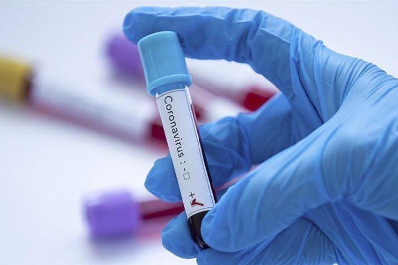 Kazakhstan reports 2,440 new COVID-19 cases