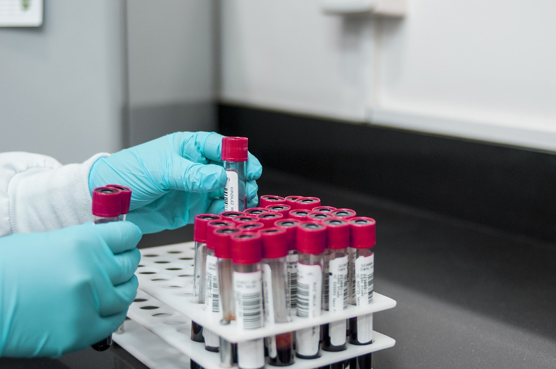 О ситуации с распространением коронавируса сообщили в Атырау