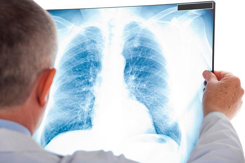 Пневмония: 10 киши касал бўлиб, 101 бемор соғайиб чиқди