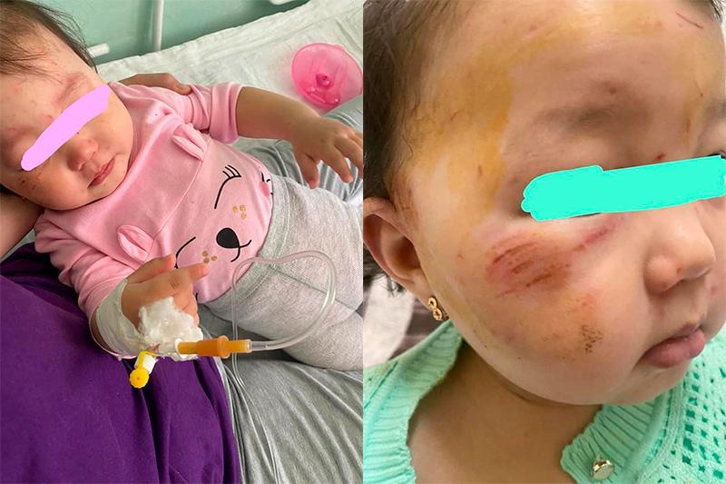 Полуторагодовалую девочку избили в Алматы: полиция изучает дело